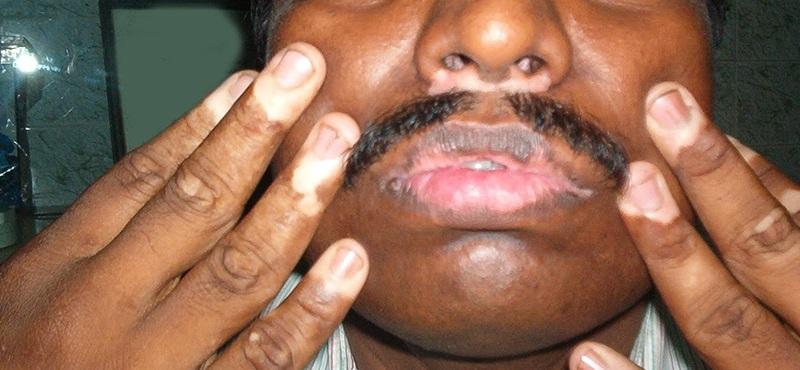 White Patches On Mouth Treatment Vitiligo On Lips Treatment